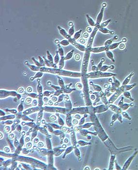 Conidiophores of Trichoderma